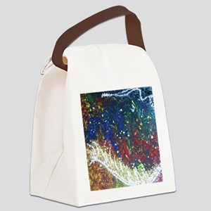 Paintings by Disabled Stroke Surv Canvas Lunch Bag