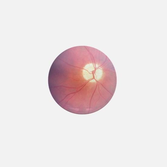 eye 2 Mini Button