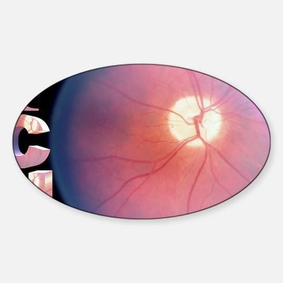 ICU Sticker (Oval)