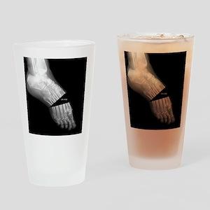 broken_foot_xray_oh_snap Drinking Glass