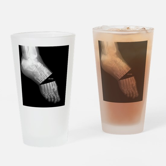 broken_foot_xray_oh_snap Drinking Glass