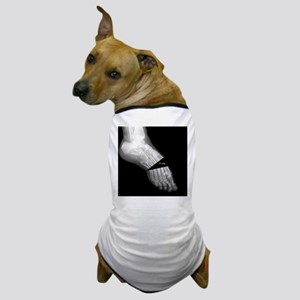 broken_foot_xray_oh_snap Dog T-Shirt