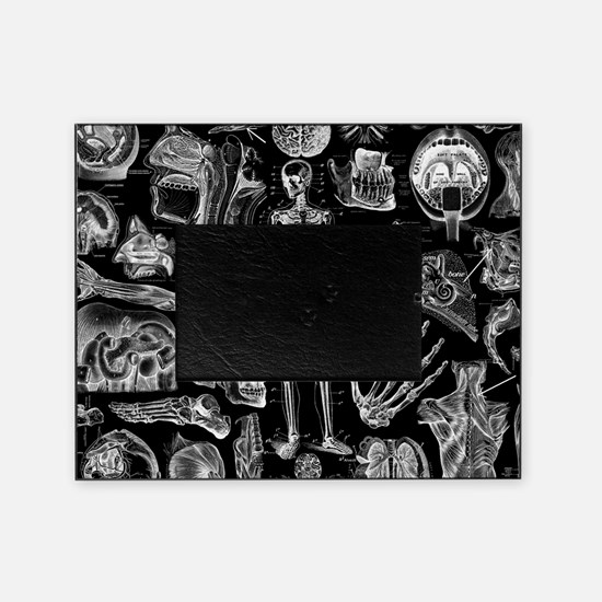 anatomy_black_pillow_cases Picture Frame