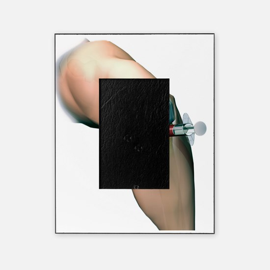 Woundcare gel therapy, artwork Picture Frame