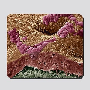 Uterine cancer, SEM Mousepad