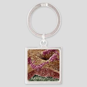 Uterine cancer, SEM Square Keychain