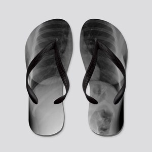 Swallowed toothbrush, X-ray Flip Flops