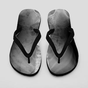 Swallowed battery, X-ray Flip Flops