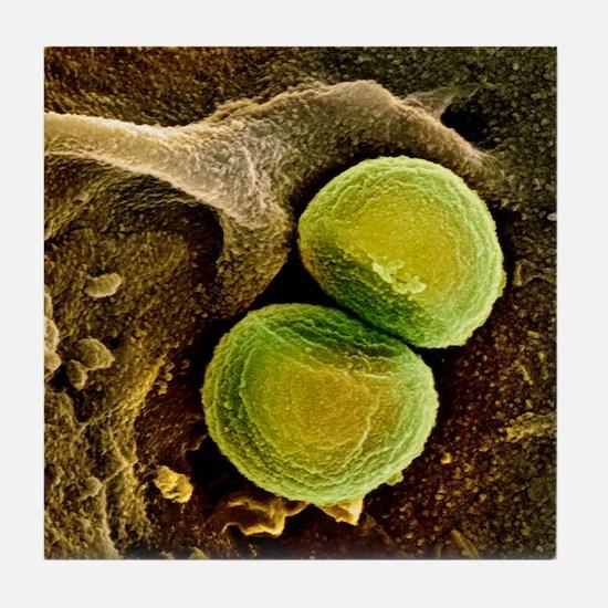 Staphylococcus aureus bacteria, SEM Tile Coaster