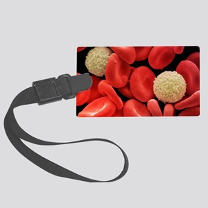 Red and white blood cells, SEM Large Luggage Tag