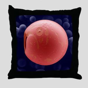 PLGA biomedical device, SEM Throw Pillow