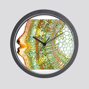 Plant breathing pore, light micrograph Wall Clock