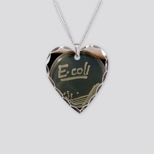 Petri dish culture of Ei  Necklace Heart Charm