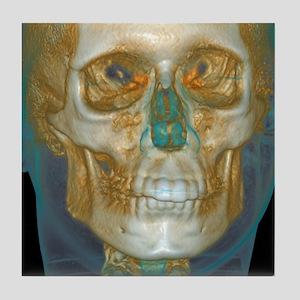 Normal head, cone beam CT scan Tile Coaster