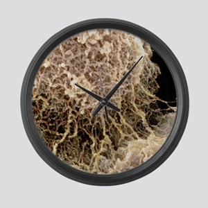 Nucleolus, SEM Large Wall Clock