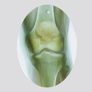 Normal knee, X-ray Oval Ornament