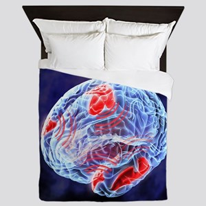 Neural synchrony, artwork Queen Duvet