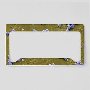 MRSA bacteria, SEM License Plate Holder