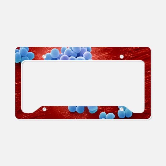 MRSA bacteria, SEM License Plate Holder