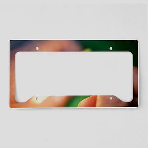 Match igniting License Plate Holder