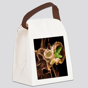 Macrophage engulfing TB bacteria, Canvas Lunch Bag