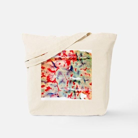 Liver tissue, light micrograph Tote Bag