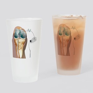 Knee cartilage reconstruction, artw Drinking Glass