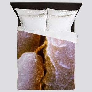 Inner ear hairs, SEM Queen Duvet