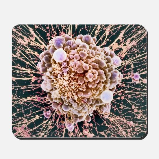 HeLa cell dying, SEM Mousepad