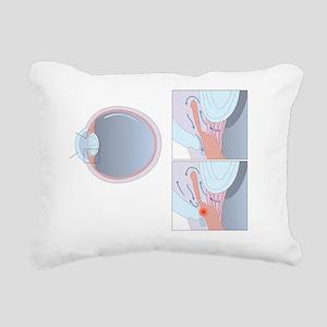 Glaucoma, artwork Rectangular Canvas Pillow