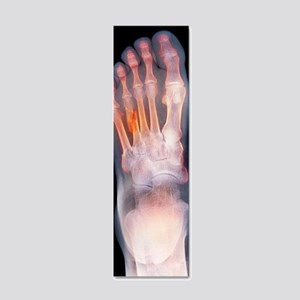 Fractured foot, X-ray 20x6 Wall Decal