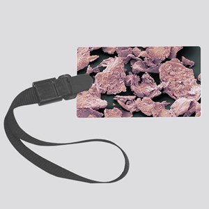 Flakes of dead skin, SEM Large Luggage Tag
