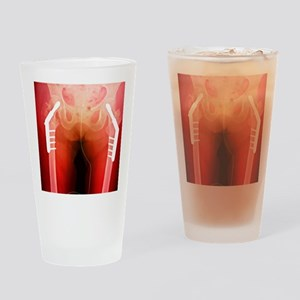 Fixed double hip fracture (image 2  Drinking Glass