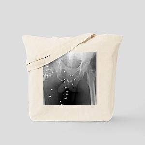 Firearm injury, X-ray Tote Bag