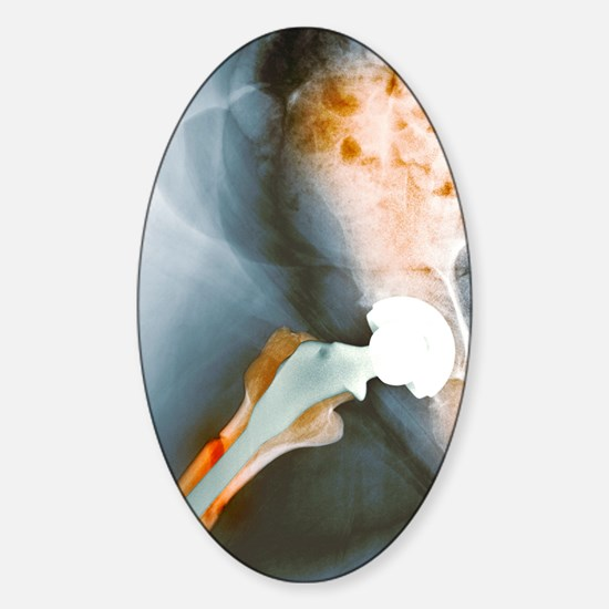 Failed hip resurfacing, X-ray Sticker (Oval)