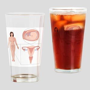 Ectopic pregnancy, artwork Drinking Glass