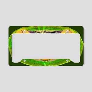 Ectopic IUD contraceptive, CT License Plate Holder