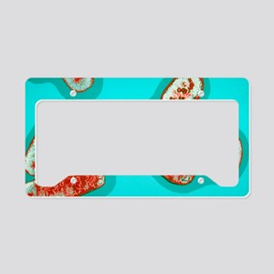 Ei bacteria conjugating License Plate Holder