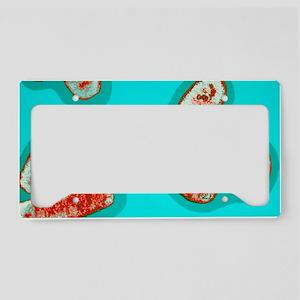Ei bacteria conjugating License Plate Holder