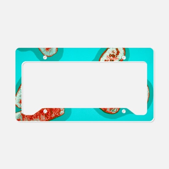 E.coli bacteria conjugating License Plate Holder