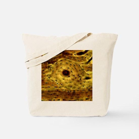 Compact bone, light micrograph Tote Bag