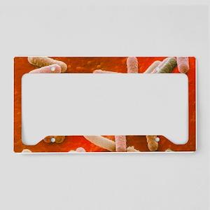 Coloured SEM of Escherichia c License Plate Holder