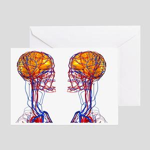 Circulatory system and brain, artwor Greeting Card