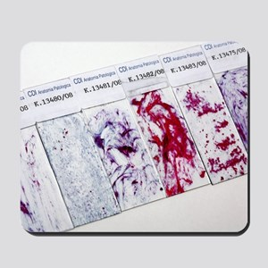 Cervical smear slides Mousepad