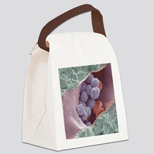 Bone marrow, SEM Canvas Lunch Bag