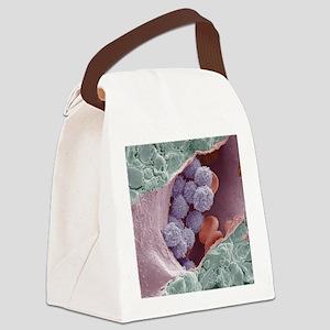 Bone marrow, SEM Canvas Lunch Bag