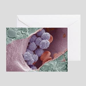 Bone marrow, SEM Greeting Card