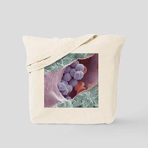 Bone marrow, SEM Tote Bag