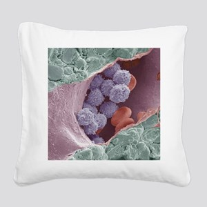 Bone marrow, SEM Square Canvas Pillow