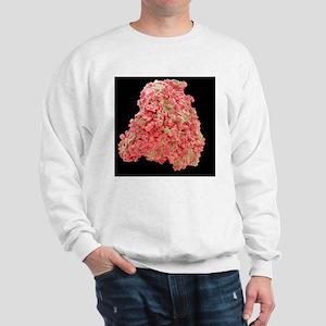 Blood clot, SEM Sweatshirt